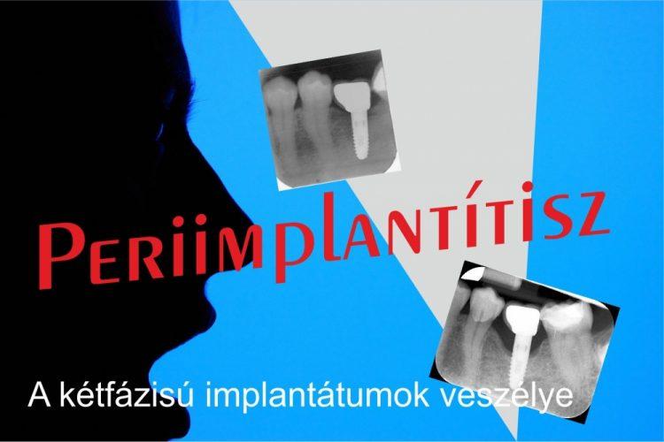 Periimplantitisz, az implantátumok körüli gyulladás