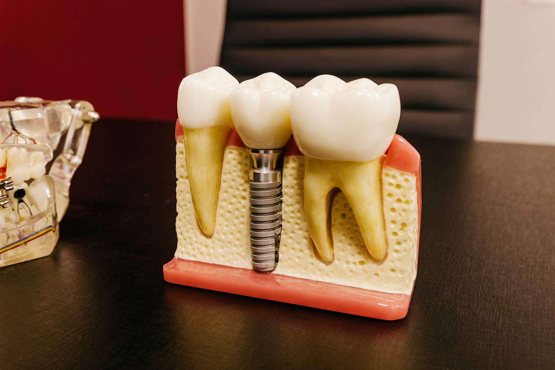 mennyibe kerül egy fogimplantátum